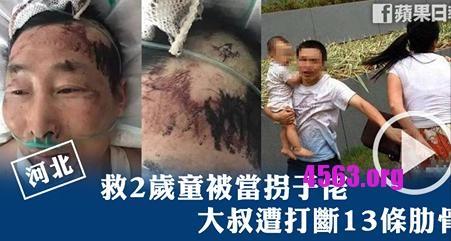 《好心救2歲童被當「拐子佬」還被打至重傷》